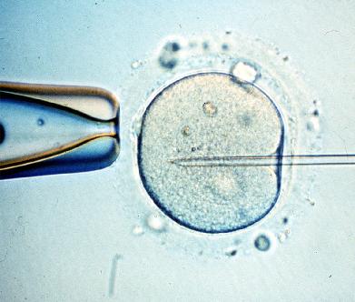 Qué y como es la Fertilización In Vitro o FIV
