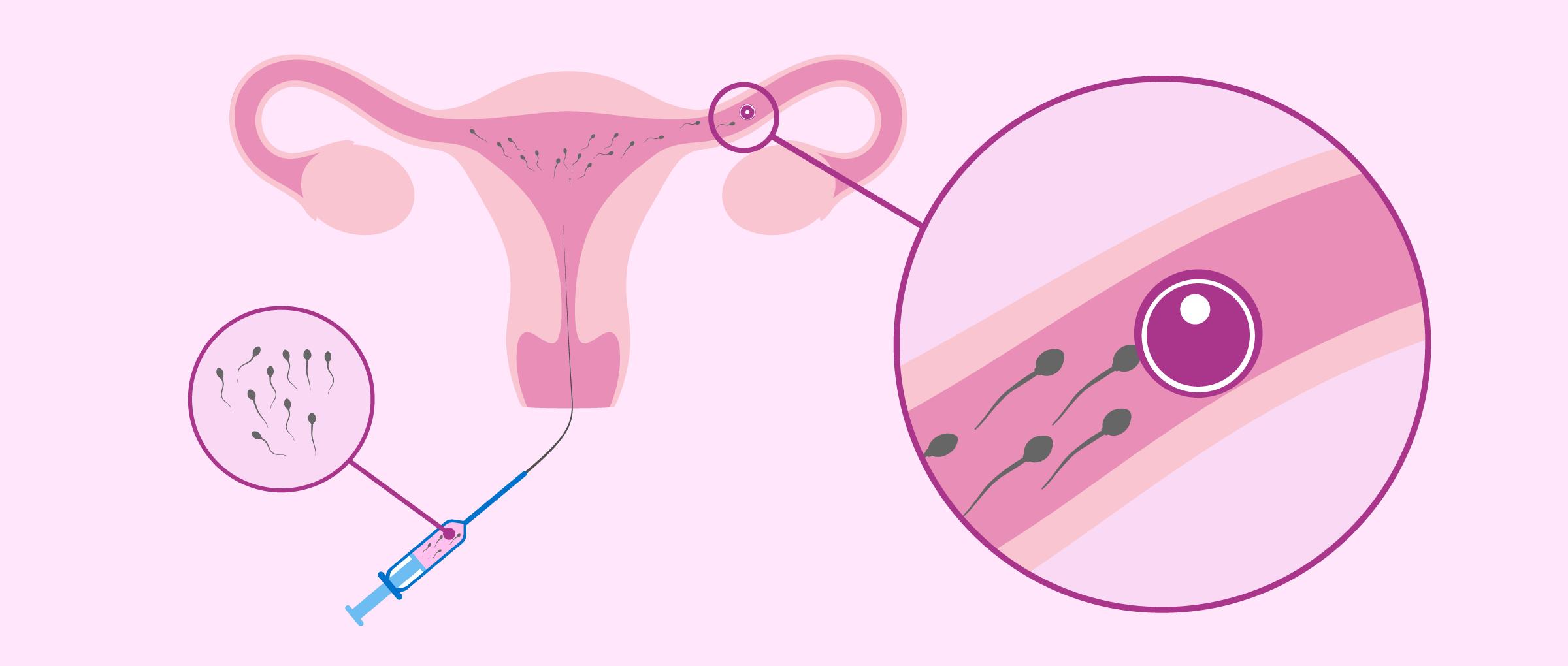 ¿Qué es la inseminación artificial y qué tipos existen?