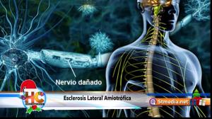 esclerosis lateral amiotrófica / complejo de la demencia parkinsonisim (als / pdc)