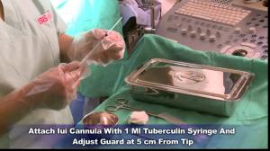 inseminación intrauterina y terapia de superovulación